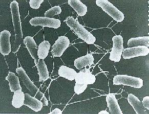 腸管出血性大腸菌